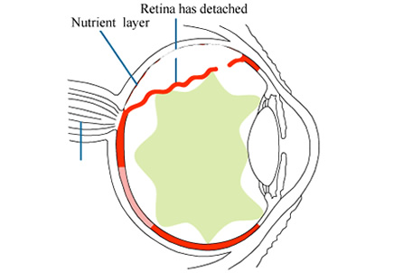 RetinalDetachment1